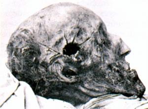 Мумифицированные останки Карла XII